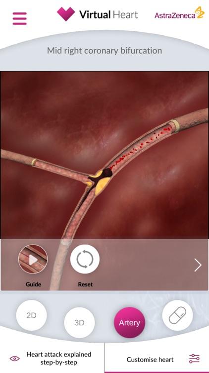 Virtual Heart - ANZ screenshot-3