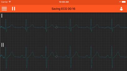 Spaulding ECG