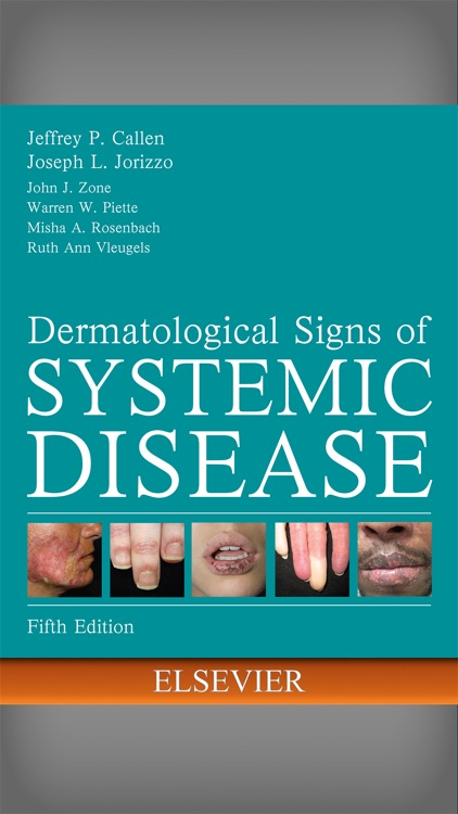 Derm Signs Systemic Disease 5E