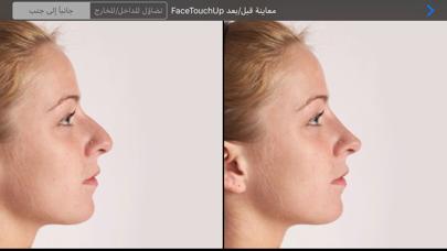 FaceTouchUp Nose Job Simulatorلقطة شاشة3