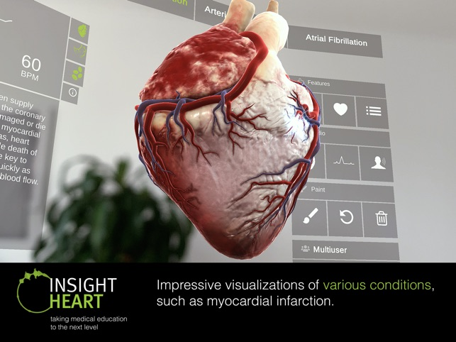 INSIGHT HEART Screenshot