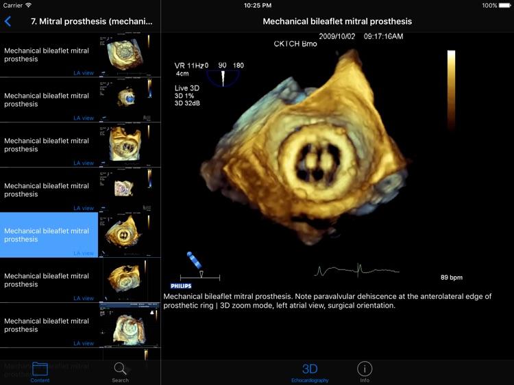 CARDIO3®3D Echocardiography HD