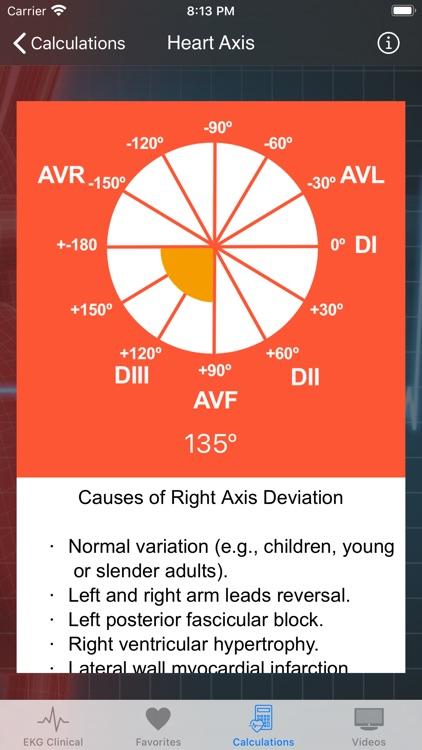 EKG Clinical screenshot-6