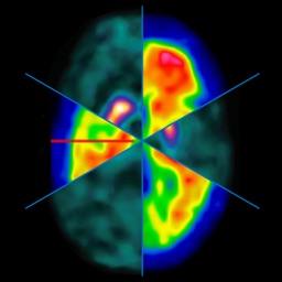 Manual de Medicina Nuclear