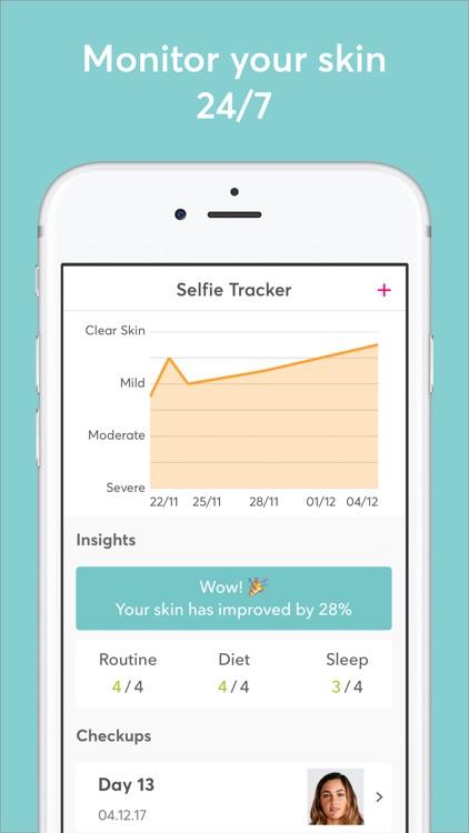 MDacne - Custom Acne Treatment screenshot-3
