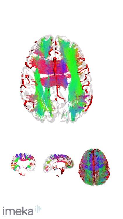 NeuroNavigator screenshot-4