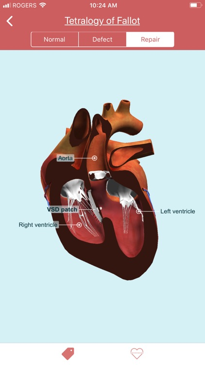 eMurmur Heartpedia screenshot-3
