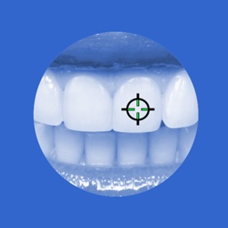 Intact-tooth