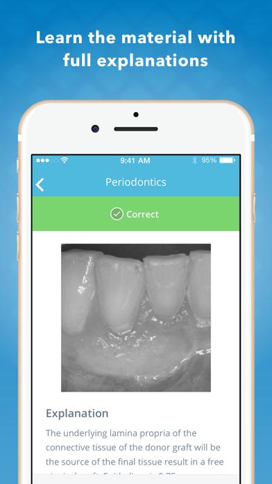 NBDE Part 2: Dental Boards Q&A screenshot three