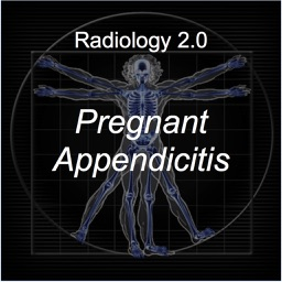Radiology 2.0: Pregnant Appendicitis
