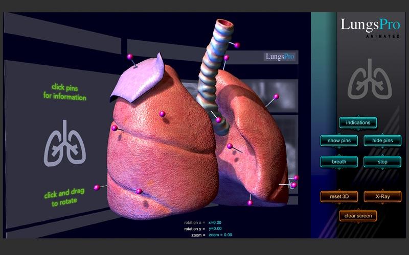 LungsProAnimated скриншот программы 2