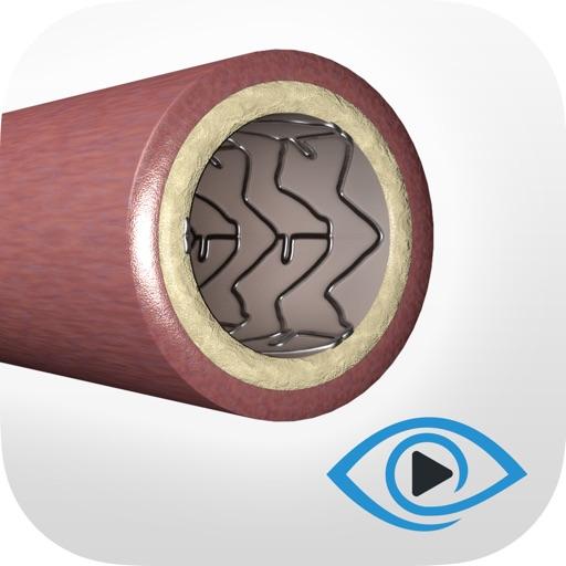 Coronary Angioplasty Training