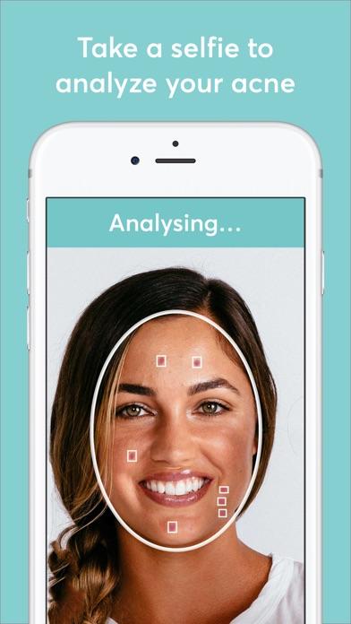 MDacne - Custom Acne Treatment Screenshot