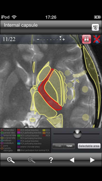 Brain MRI Sectional Walker screenshot-3