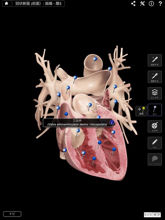 Heart Pro IIIのおすすめ画像2