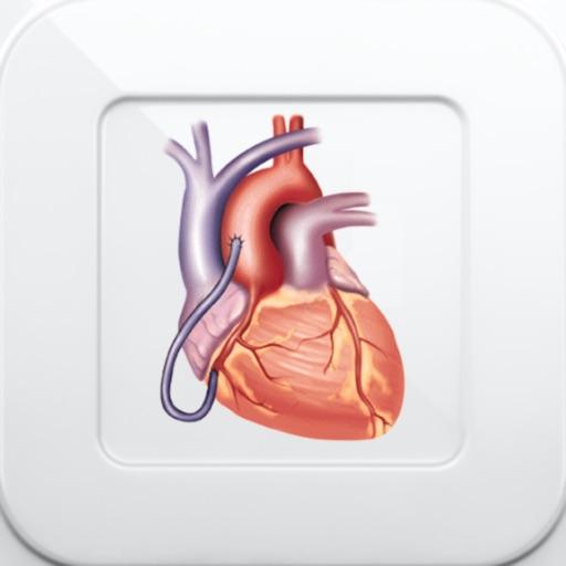 1000 Heart & Coronary Disease