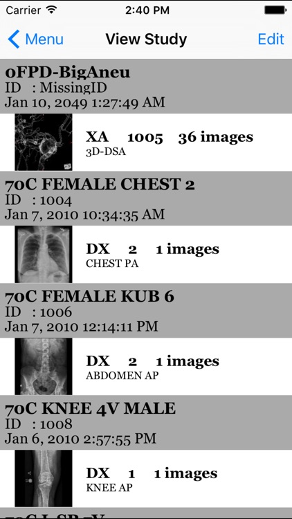 iMedViewer screenshot-2