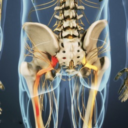 Sciatic Pain Relief