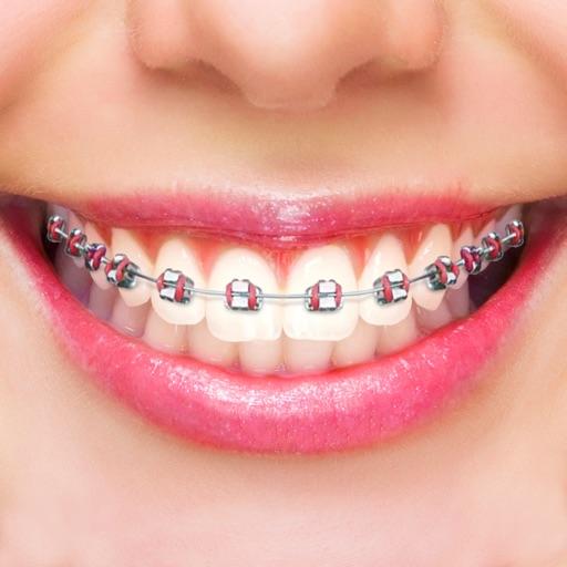 t u00e9l u00e9charger faux appareil dentaire  u00e9diteur pour iphone    ipad sur l u0026 39 app store  photo et vid u00e9o