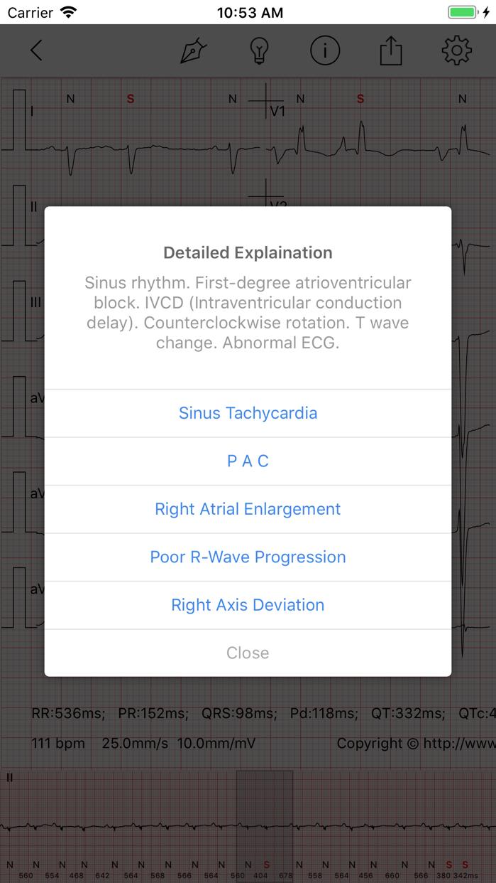 ECG - Cases for CME & EMT Screenshot