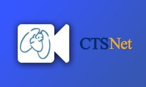 CTSNet TV