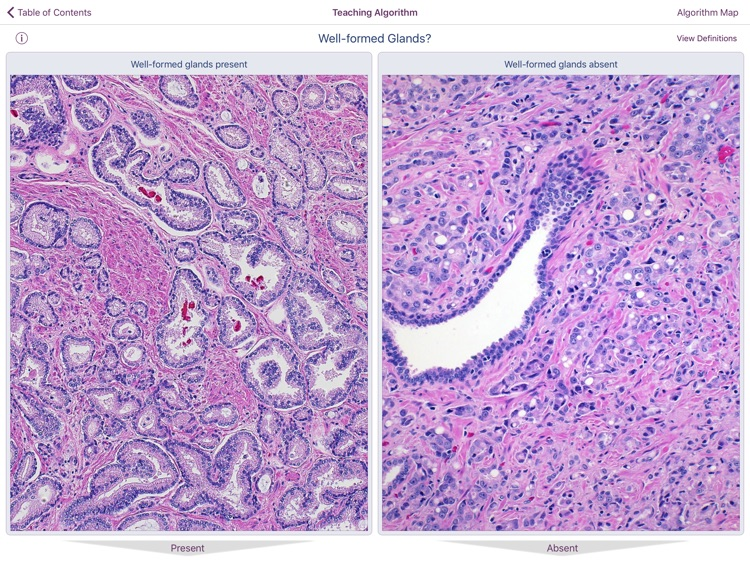 Hopkins Prostate Pathology screenshot-3