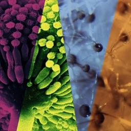 Management of Invasive Molds