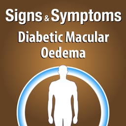 Signs & Symptoms Diabetic Malucar Oedema