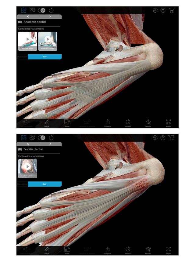 Muscle Premium en App Store