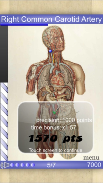 Screenshot for Speed Angiology MD in Denmark App Store