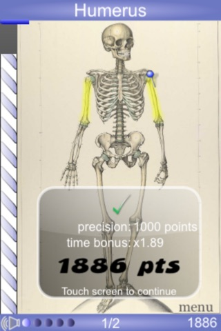 Screenshot for Speed Bones MD in Germany App Store