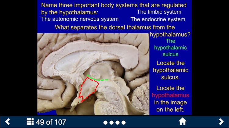 Neuroanatomy - SecondLook screenshot-4