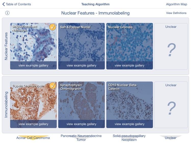 Johns Hopkins Atlas of Pancreatic Cytopathology screenshot-3