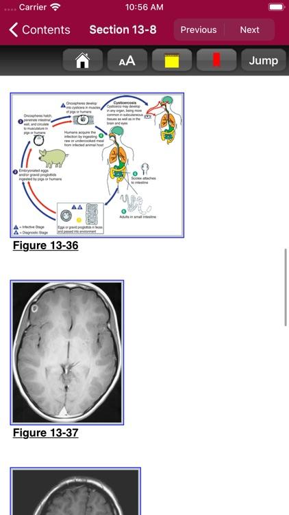 Atlas of Pediatric ER Med, 3/E screenshot-5