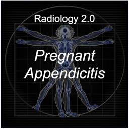 Pregnant Appendicitis