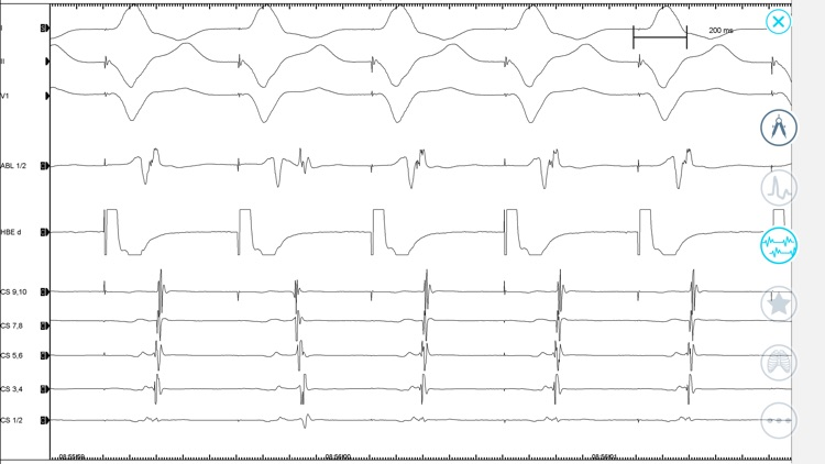 Cardiac Arrhythmia Challenge screenshot-6