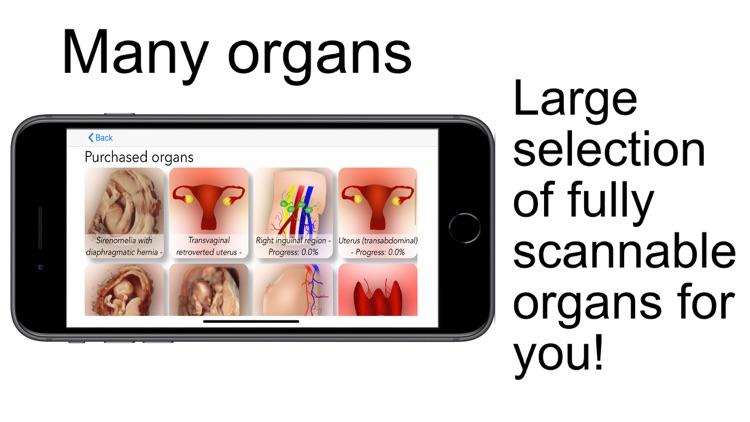 Scanbooster Ultrasound Sim screenshot-4