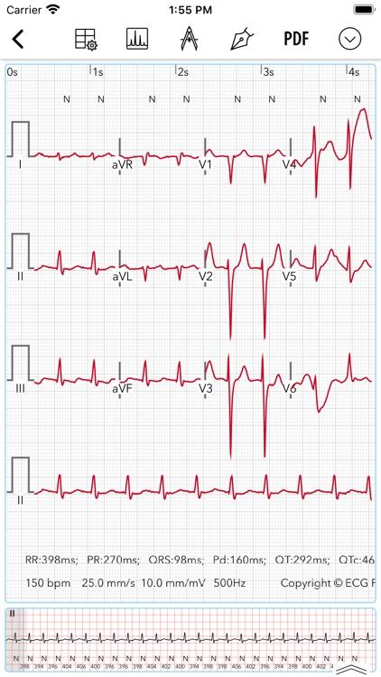 ECG / EKG screenshot-3