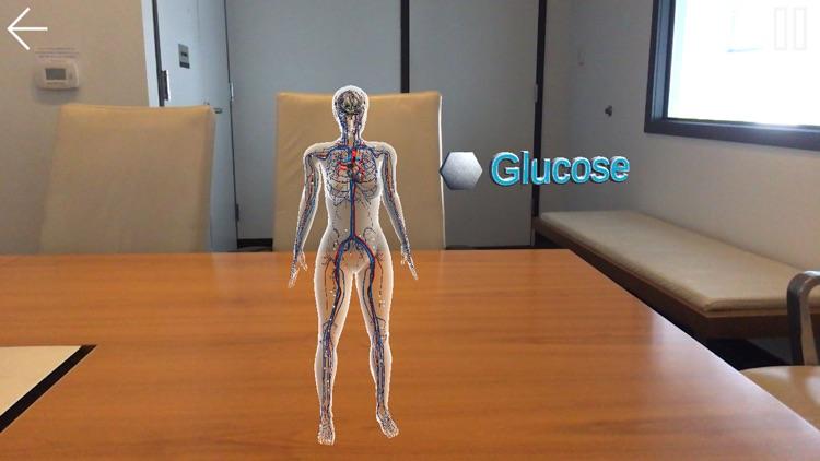 SGLT2 & GLP-1 in Diabetes