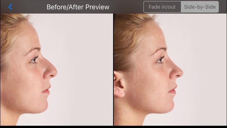 FaceTouchUp Nose Job Simulator screenshot-3