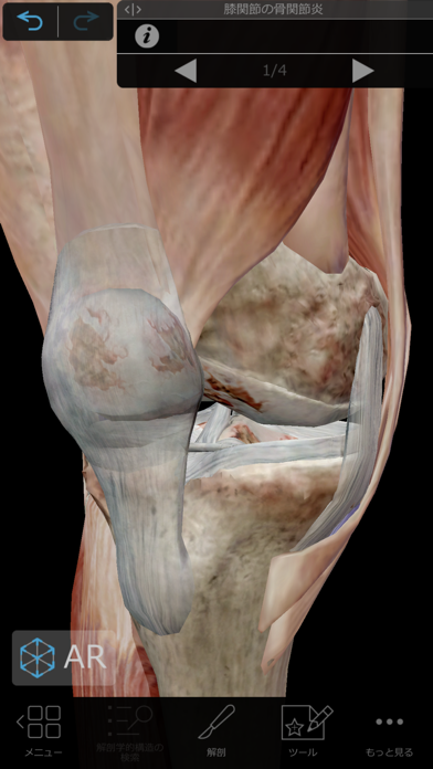 筋肉とキネシオロジー ScreenShot4