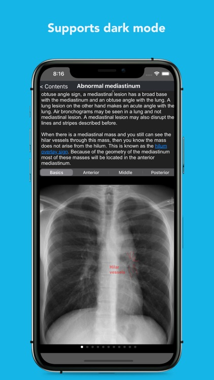 iCXR - Chest xray manual screenshot-5