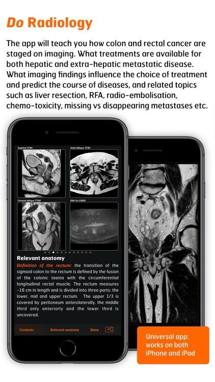 Radiology - CRC Staging Atlas