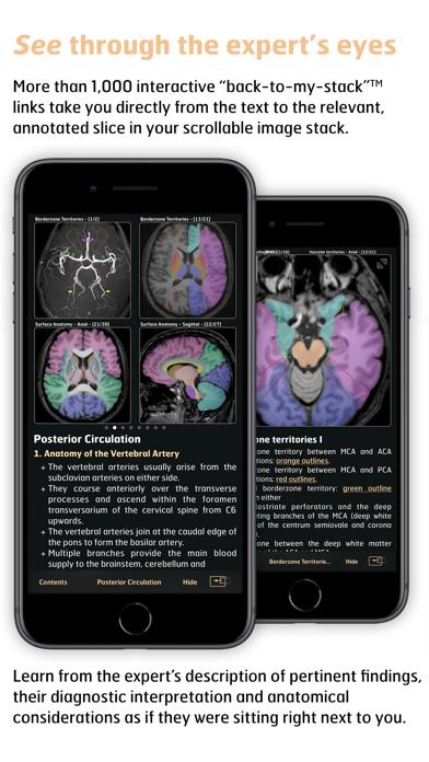 Radiology - Imaging in Stroke screenshot four