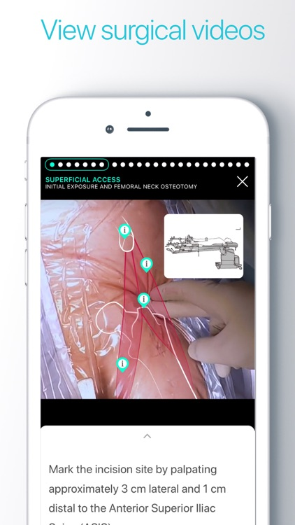Touch Surgery: Surgical Videos screenshot-4