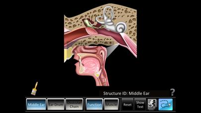 Middle Ear ID