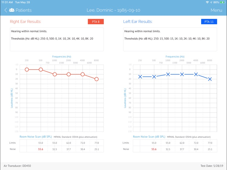SHOEBOX Audiometry Pro screenshot-9
