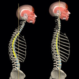 Kyphosis & Rounded Back