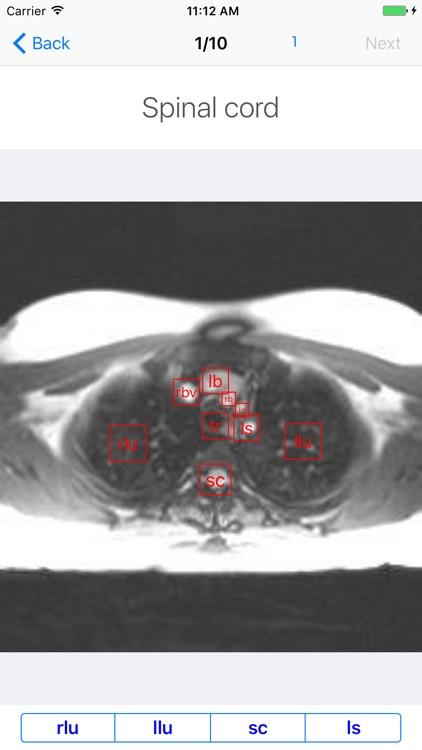 iAnatomy-Cardiac screenshot-3