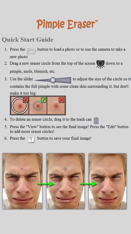 Pimple Eraser LITE screenshot-4